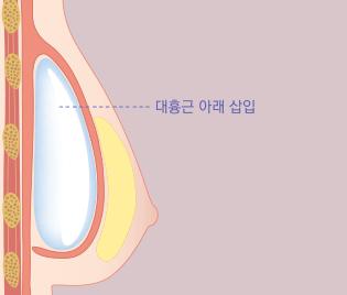 대흉근 아래 삽입