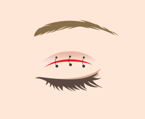 근육과 피부 연결