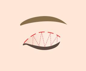 피부와 상안검거근 연결