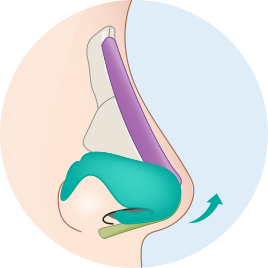 날개연골 성형술