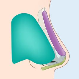 비중격 성형술