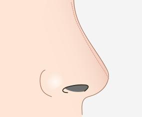 절개부위 봉합