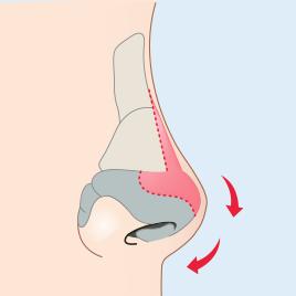 연골 절제